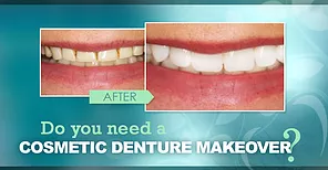 Cosmetic_Denture_Makeover