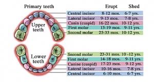 Dental_work_Upper_Lower_Teeth