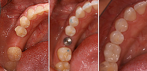 Dental Implants Installed by Dr. Kilby