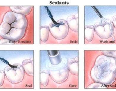 Applying Sealant to Teeth
