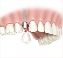 Single_Implant