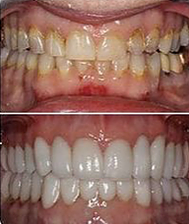 before_and_after_teeth.3