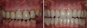before_and_after_teeth_2