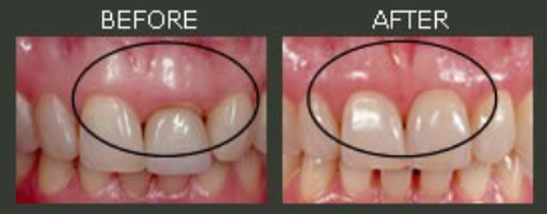 Crown Lengthening before and after