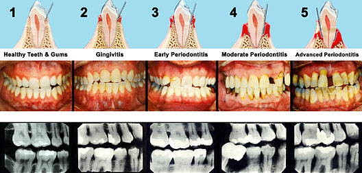 Examples of Periodontal disease