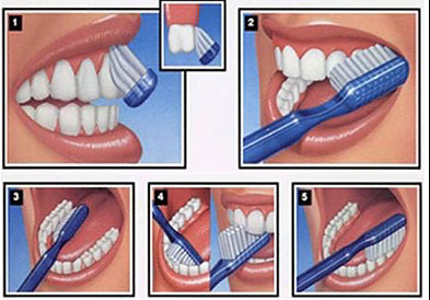 Steps displaying how to brush your teeth