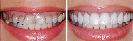 Smile Reconstruction with Periodontal Surgery, Crowns, and Veneers