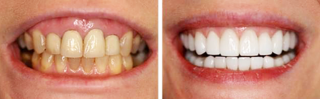 Full Mouth Reconstruction with Crowns, Bridges after Periodontal Surgery