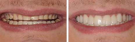 Full Mouth Reconstruction with Veneers and Crowns