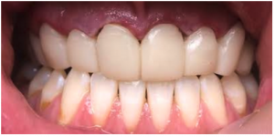 Temporary crowns of upper front teeth