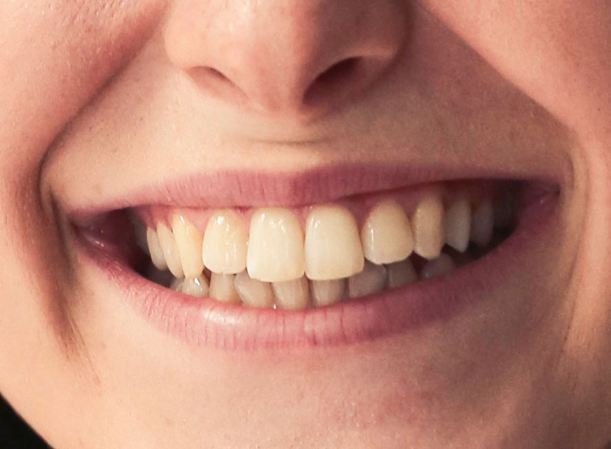 An example of the big smile image
